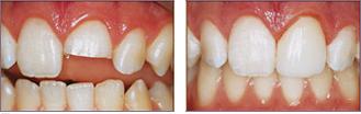 dental_bonding