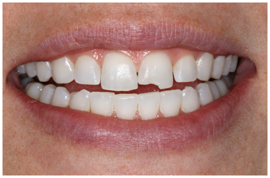 Chipped-Tooth-Repair